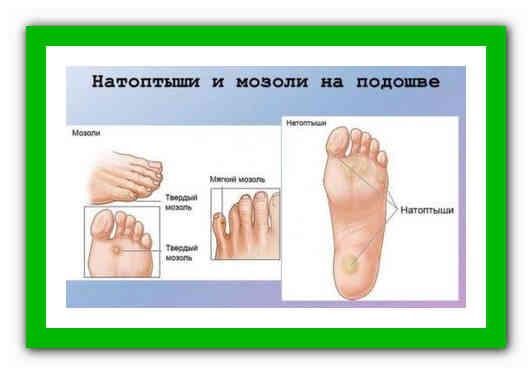Лучшие способы лечения натоптышей на ступнях
