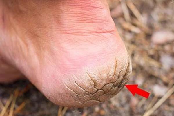 Трещины на пальцах рук – каковы причины и лечение повреждений