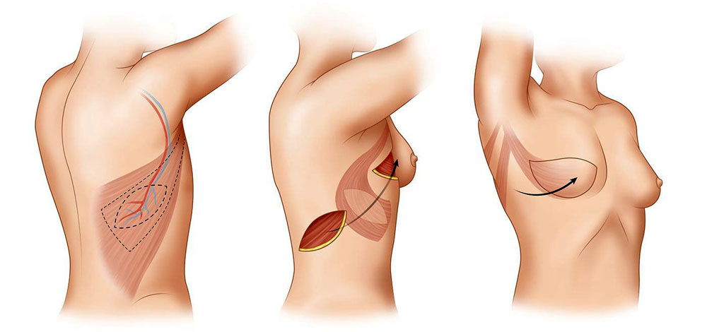 Увеличение груди: вопрос-ответ
