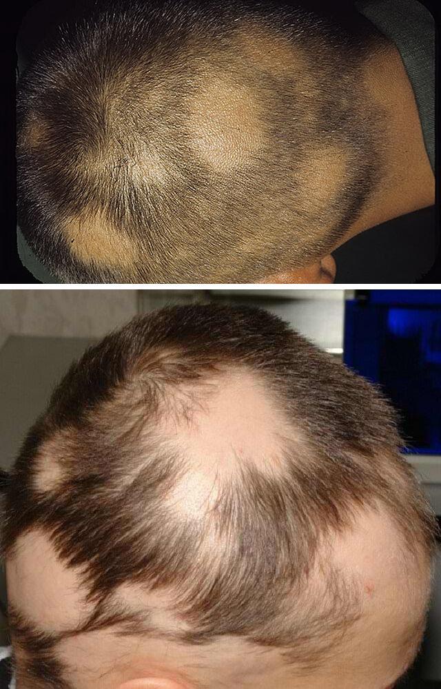 Выпадение волос у мужчин в молодом возрасте: причины, что делать?