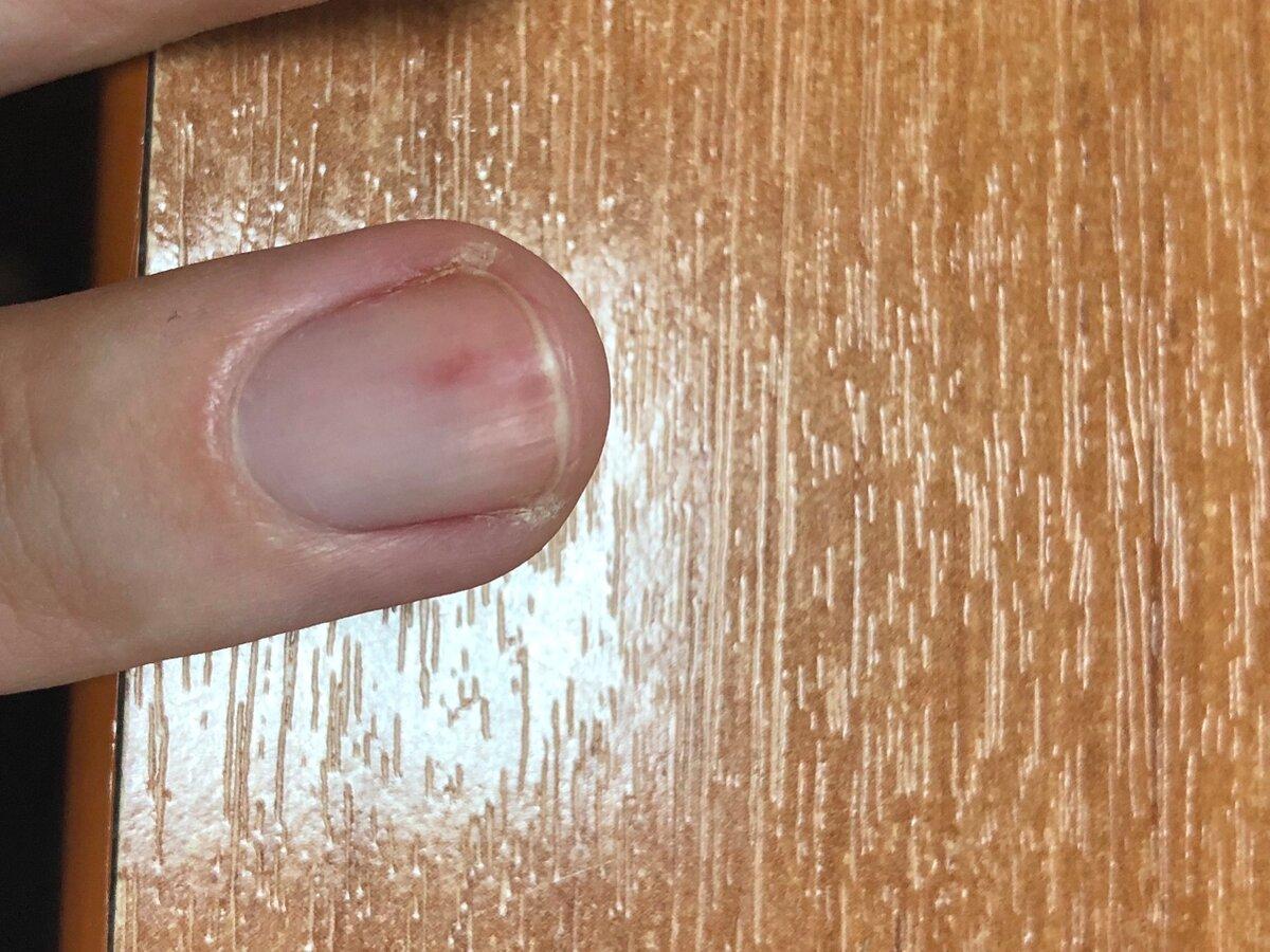 На ногте черная точка. почему появляются черные точки на ногтях и как от них избавиться