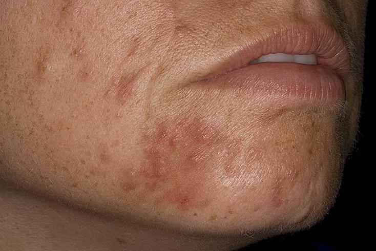 Периоральный дерматит: причины, симптоматика и лечение