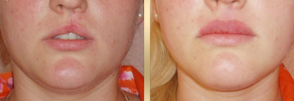 Эффективная пластика губ: инъекции или хейлопластика?