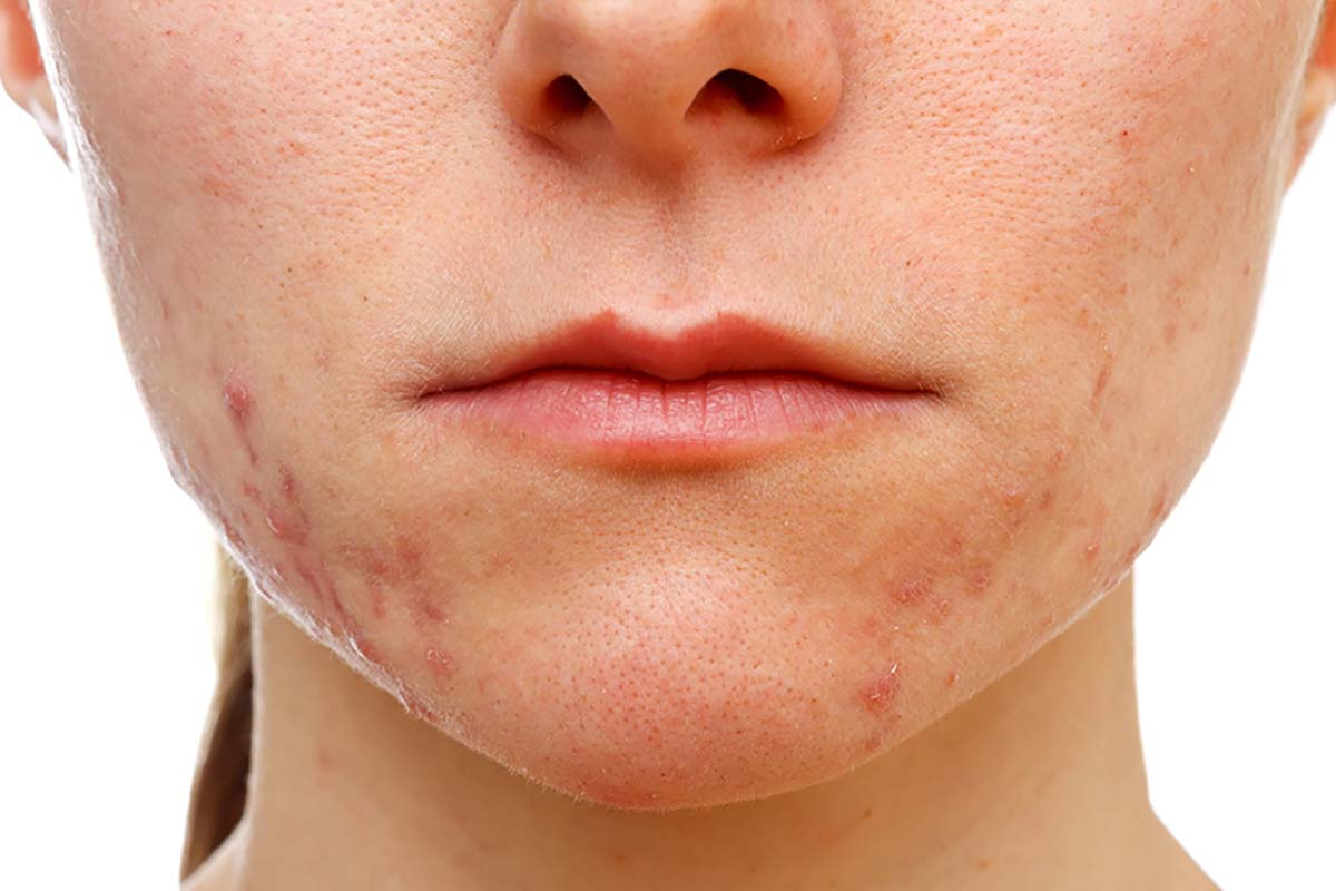 Как убрать шрамы от прыщей на лице: мази, лазерное удаление и маски в домашних условиях