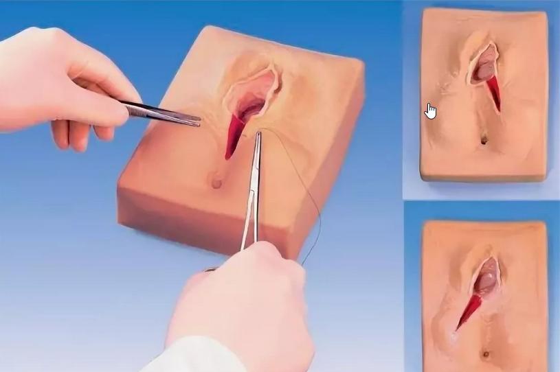 Лабиопластика - цена операции, сделать пластику половых губ в москве - клиника «мать и дитя»