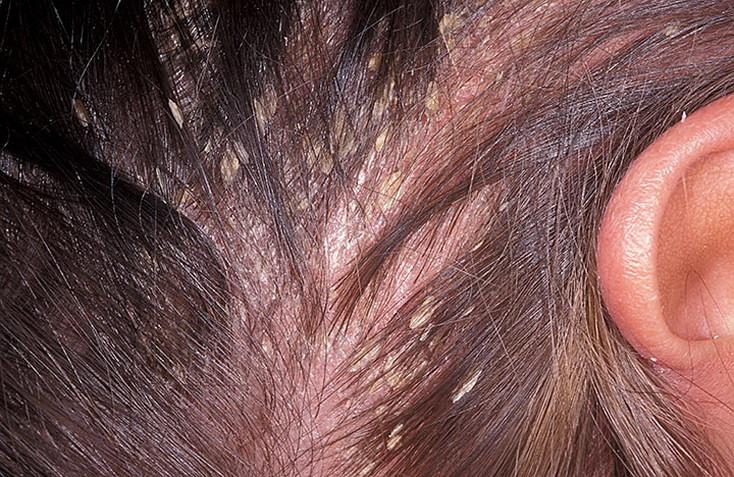 Медикаментозное и народное лечение жирной себореи на лице