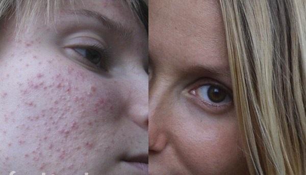 Водянистые прыщи на лице: причины, как избавиться