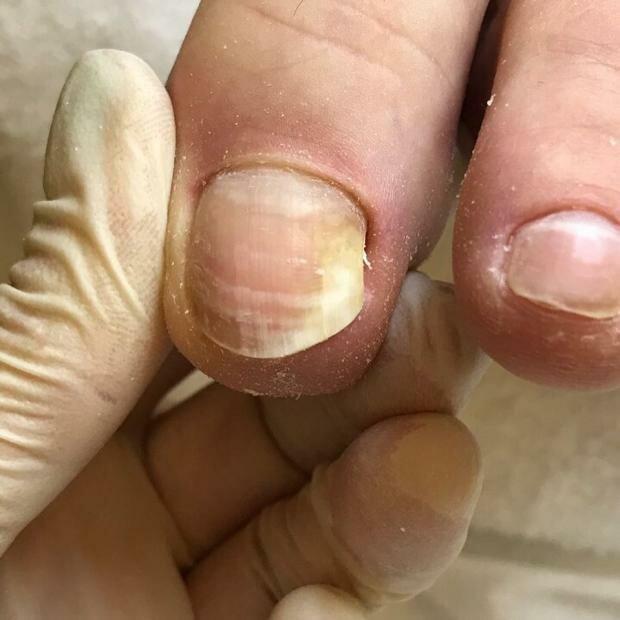 Ониходистрофия ногтей: лечение заболевания и причины его появления