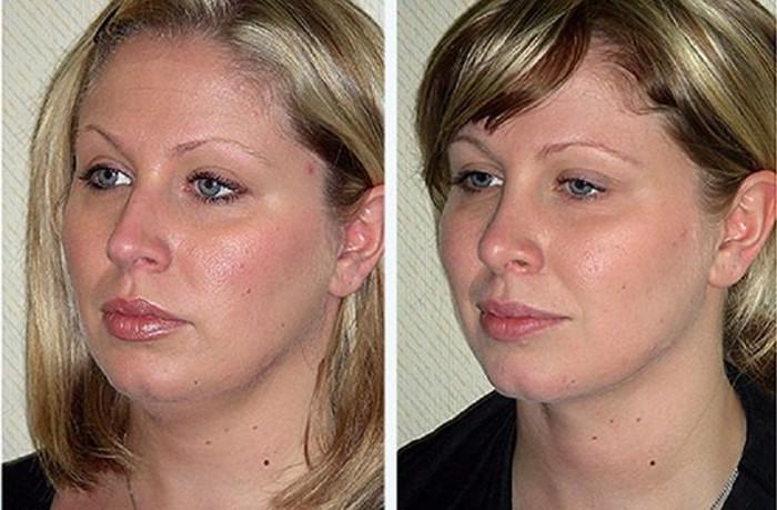 Что такое комки биша: плюсы и минусы их удаления. фото до и после операции