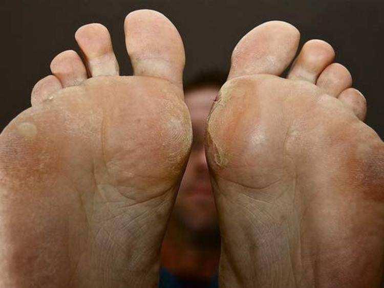 Варианты удаления натоптышей на ногах или как выбрать наиболее безопасный и эффективный способ для уничтожения огрубевшей кожи мозолей