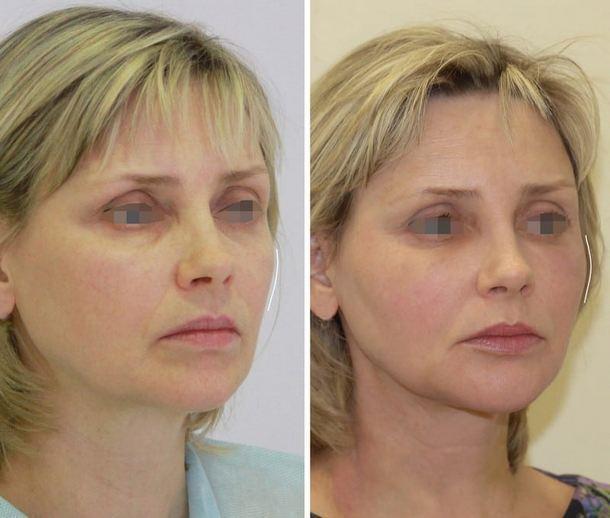 Липофилинг: пластическая хирургия выходного дня - пластика и салонные процедуры по уходу