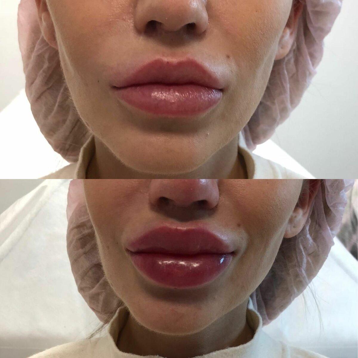 Противопоказания и показания к инъекционному увеличению губ гиалуроновой кислотой. подготовка губ и уход после процедуры увеличения гиалуроновой кислотой. как проходит процедура увеличения губ. фото до и после увеличения губ | inwomen