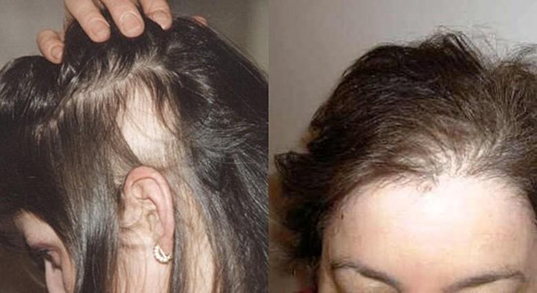 Что можно считать нормой выпадения волос в день