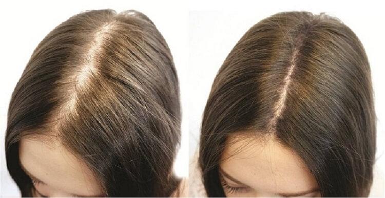 Дарсонваль для роста волос: реальные отзывы о применении дома