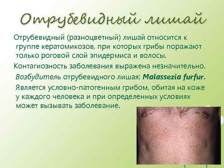 Отрубевидный лишай у человека: фото, симптомы и лечение | здрав-лаб