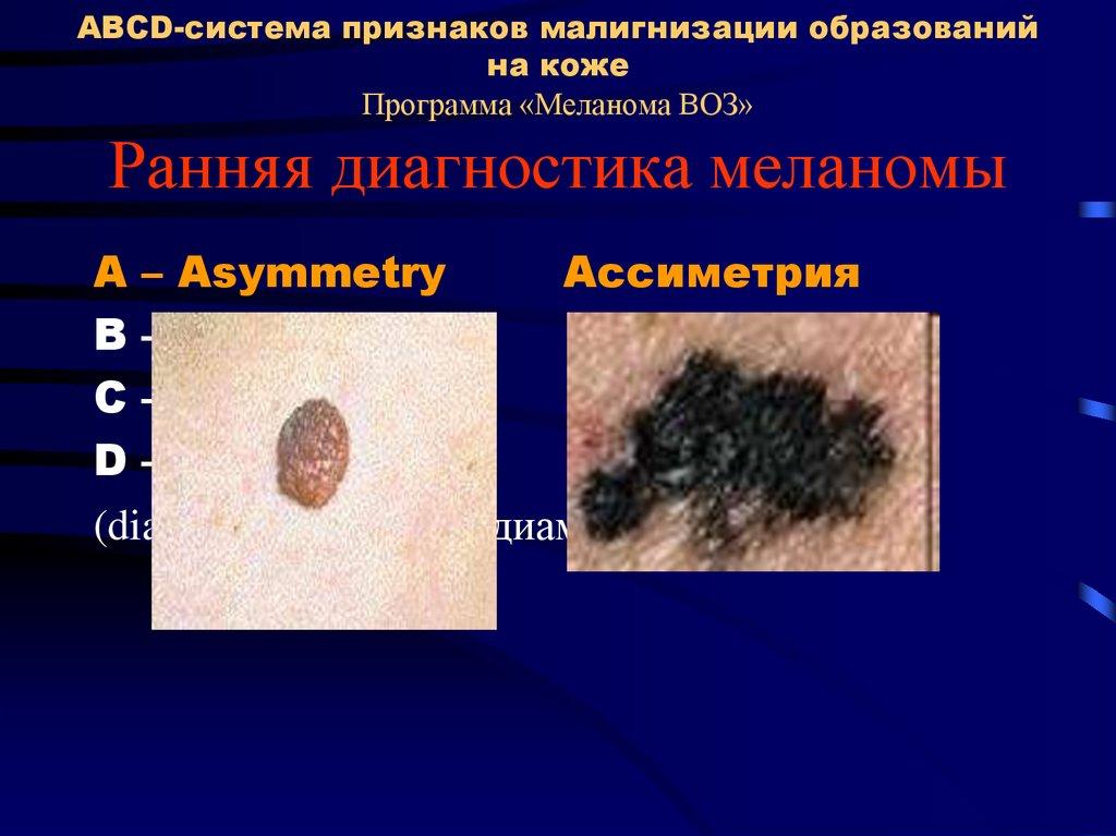 Меланома – фото начальная стадия. фото меланом