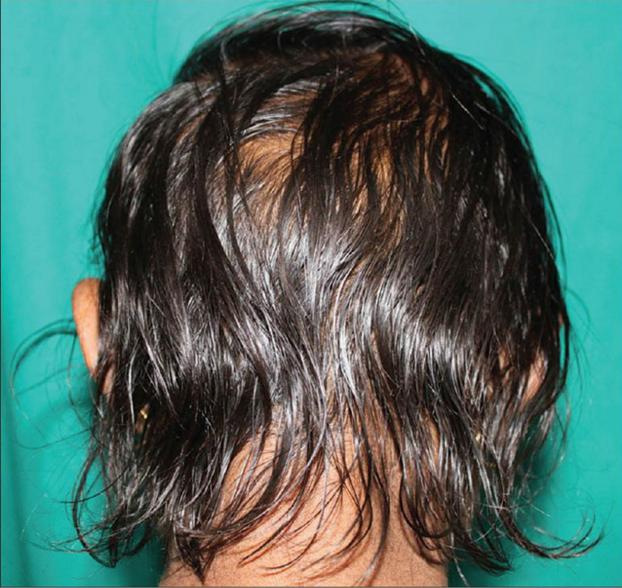 Диффузное выпадение волос: что это такое, причины, лечение у женщин и мужчин
