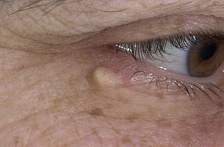 Киста сальной железы: фото, лечение, причины появления на лице