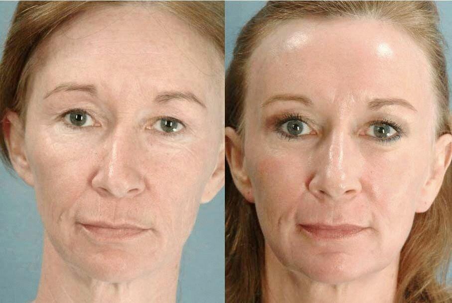 Лазерная шлифовка лица: описание процедуры, плюсы и минусы