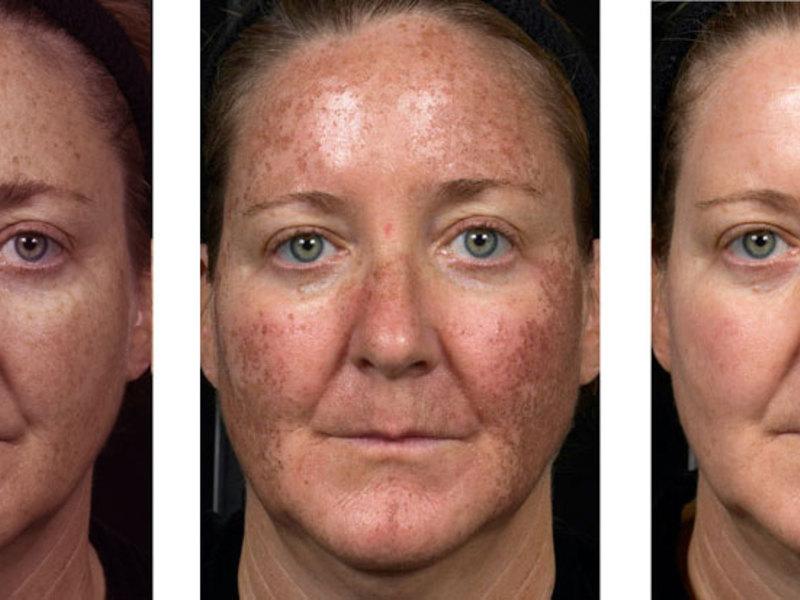 Процедура фотоомоложения лица: её результат и эффективность