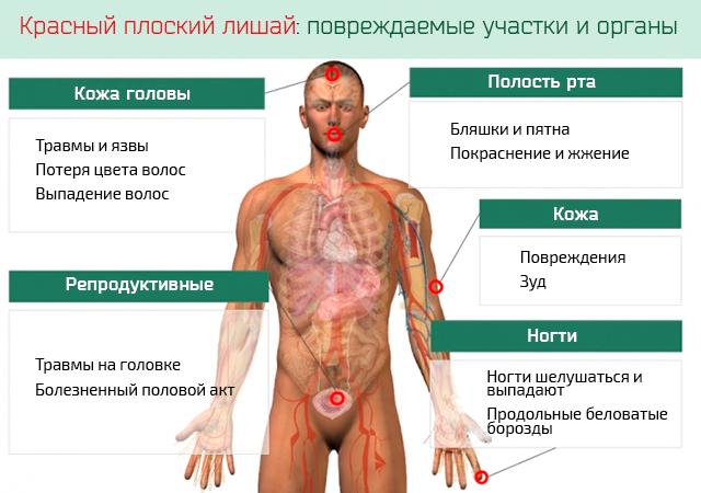 Лишай у человека – фото, виды, симптомы и лечение