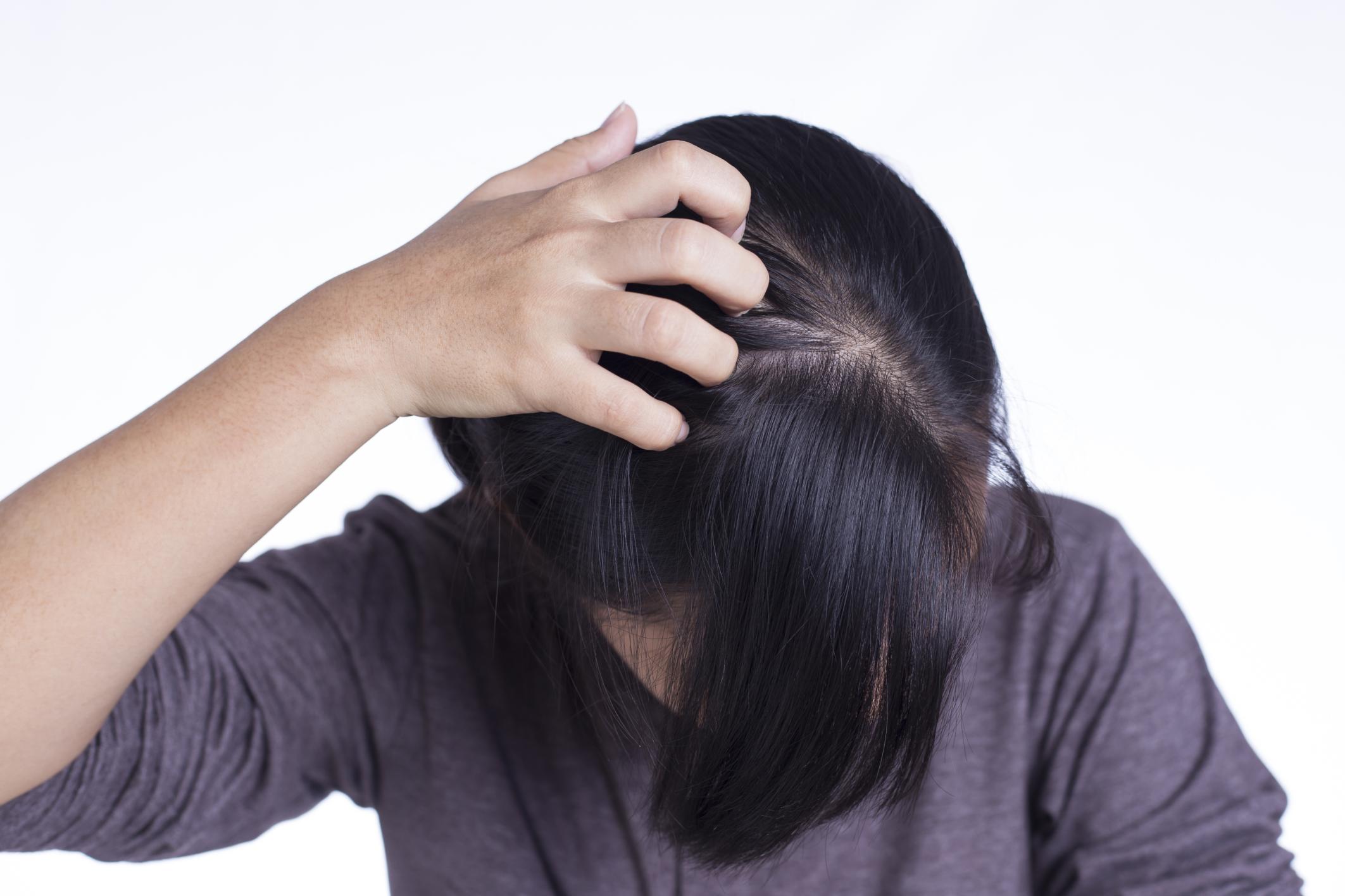 Чешется голова и выпадают волосы