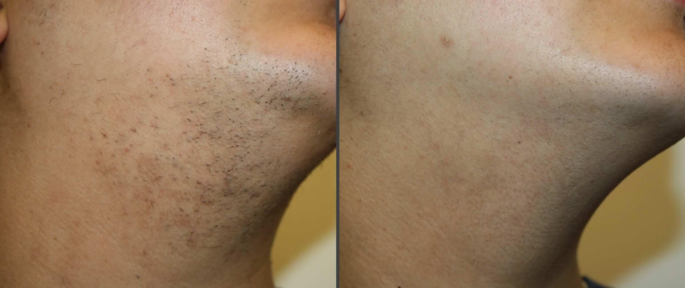 Лазерная эпиляция: надежное решение проблемы нежелательных волос