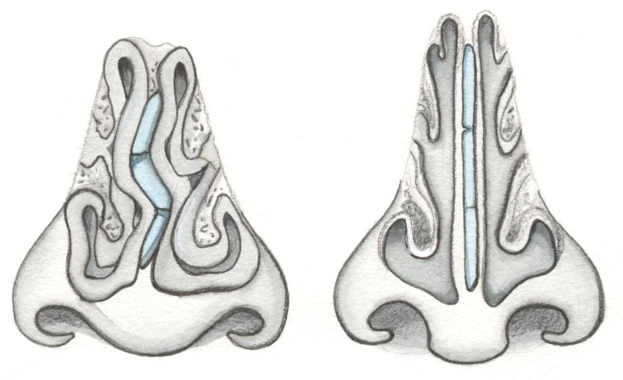 Лучший способ лечения искривления носовой перегородки