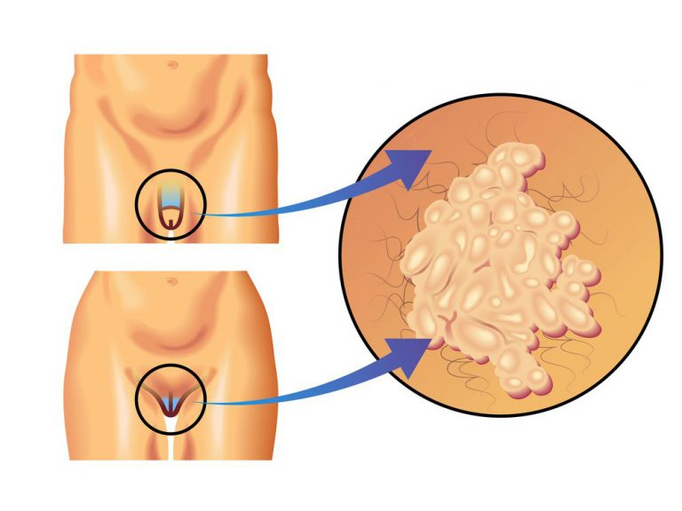 Кондиломатоз – остроконечные кондиломы у женщин, лечение, фото, причины, симптомы