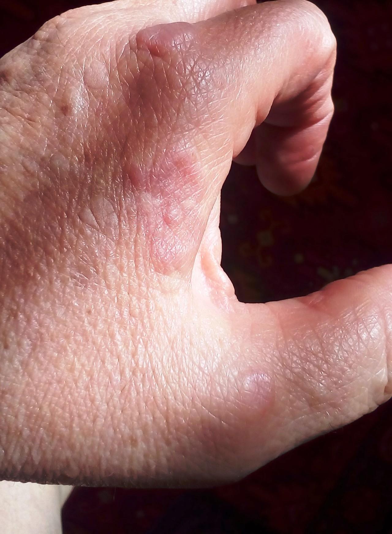 Псориаз (чешуйчатый лишай): причины возникновения и лечение