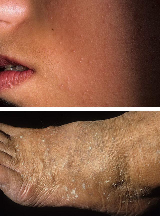 Что собой представляет и как лечить кератому кожи