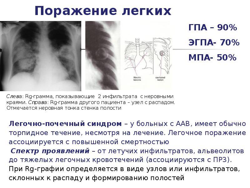 Васкулит – что это за болезнь? симптомы, причины и лечение