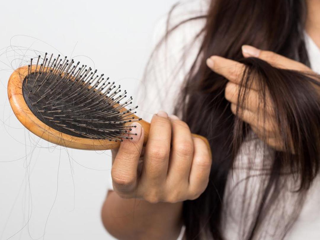 Выпадение волос: что считается нормой и когда стоит беспокоиться. средство от выпадения волос