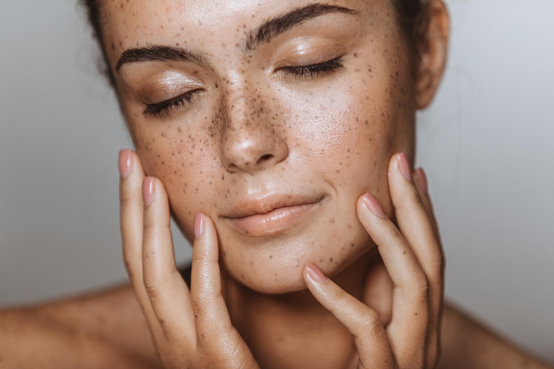 Жирная кожа лица что делать, как лечить и ухаживать