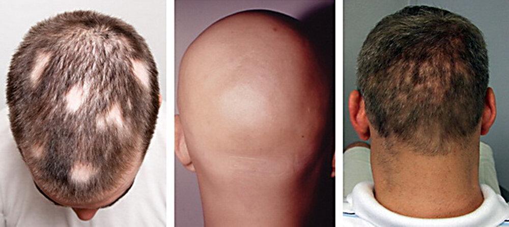 Облысение у мужчин: признаки, способы лечения и профилактики