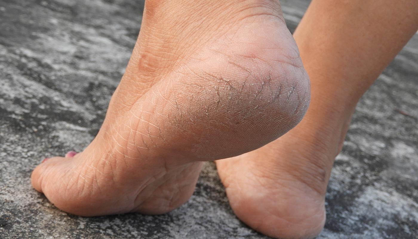 Трещины на стопах ног: причины образования, диагностика, профилактика и лечение трещин на стопах бальзамом хранитель