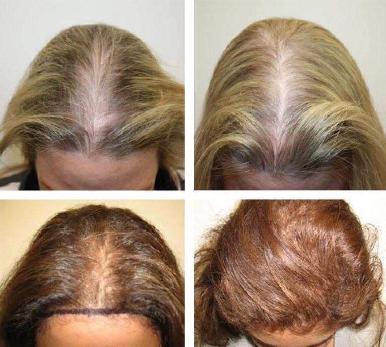 Особенности дарсонвализации волосистой части головы