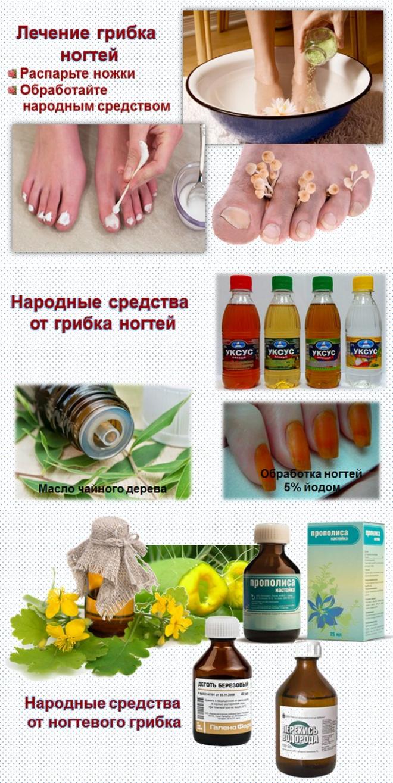 Лечение грибка ногтей народными средствами, в домашних условиях