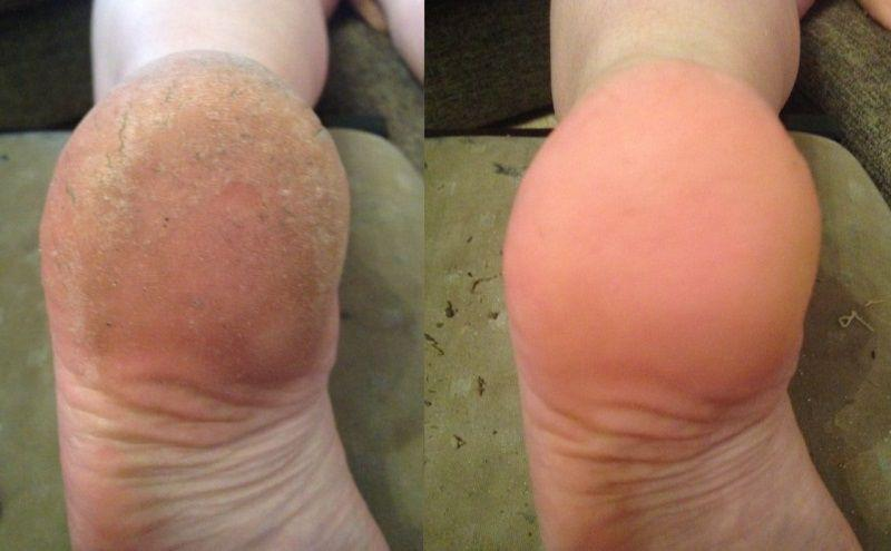 Как лечить трещины на пальцах ног