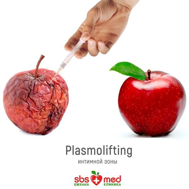 Плазмолифтинг лица. что это такое, фото до и после уколов, стоимость плазма лифтинга, отзывы