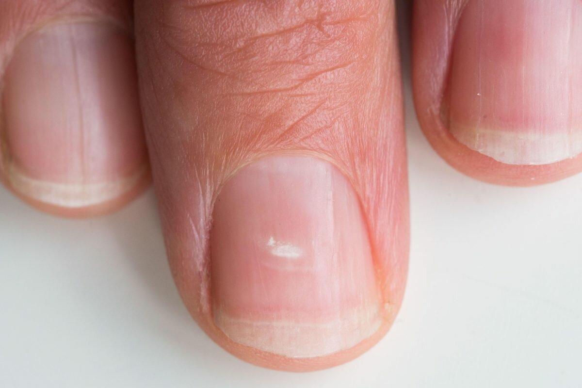 Черные точки на ногтях: причины, лечение, профилактика