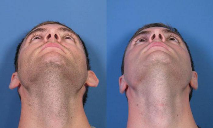 Операция по устранению дефектов ушей – отопластика. показания, виды, возможные последствия