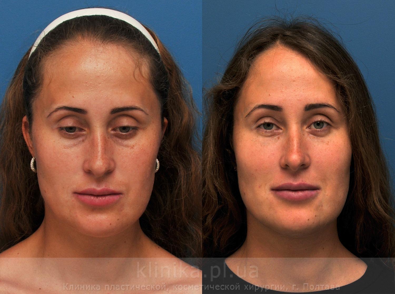 Липофилинг носогубных складок: описание процедуры, показания и противопоказания для ее проведения