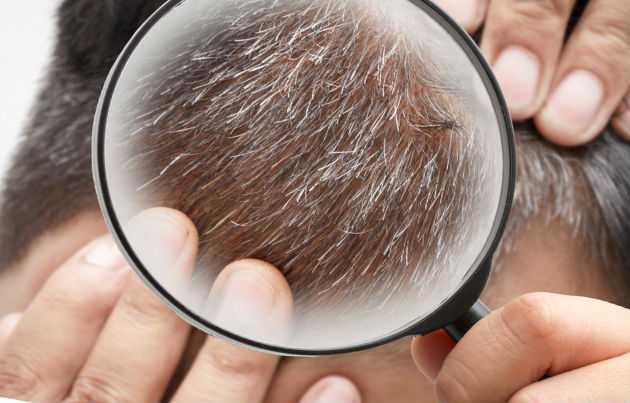 Почему седеют волосы в раннем возрасте?