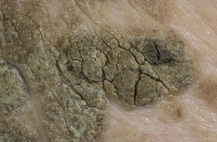 Гиперкератоз - фото кожи и плоского эпителия, лечение, препараты   здрав-лаб