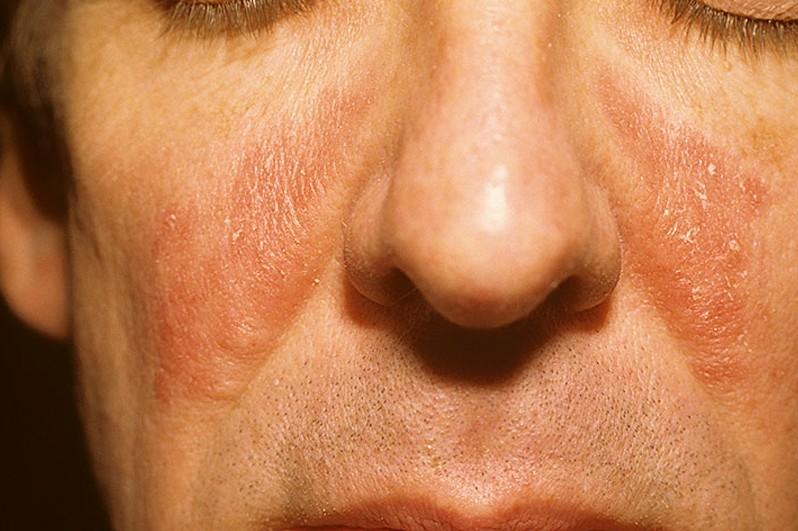 Схема лечения контактного дерматита