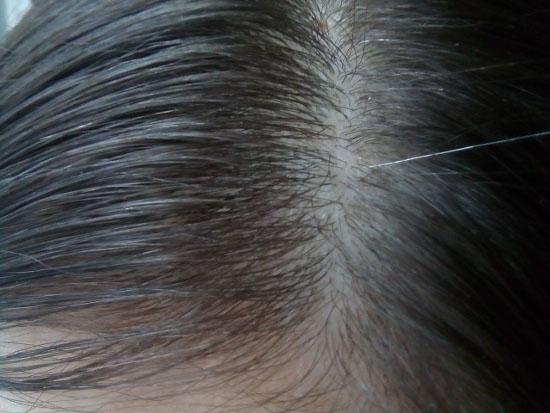 Седина вголову. почему мы седеем итеряем волосы. новости общества