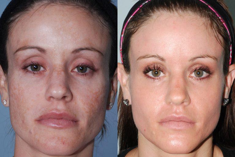 Лазерная шлифовка лица: стоимость, лазерное омоложение, лазерный пилинг