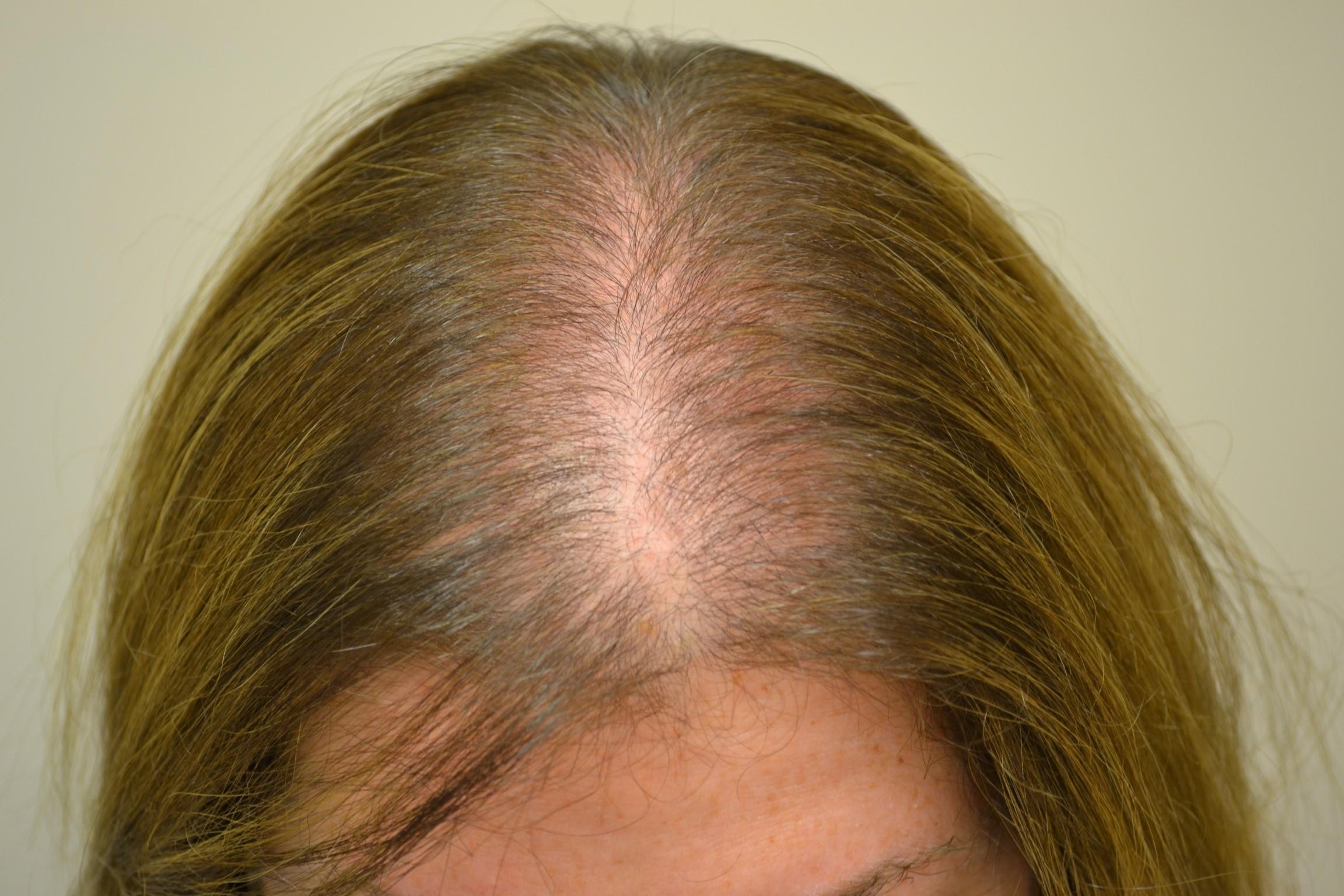 Сильное выпадение волос у женщин: причины и лечение