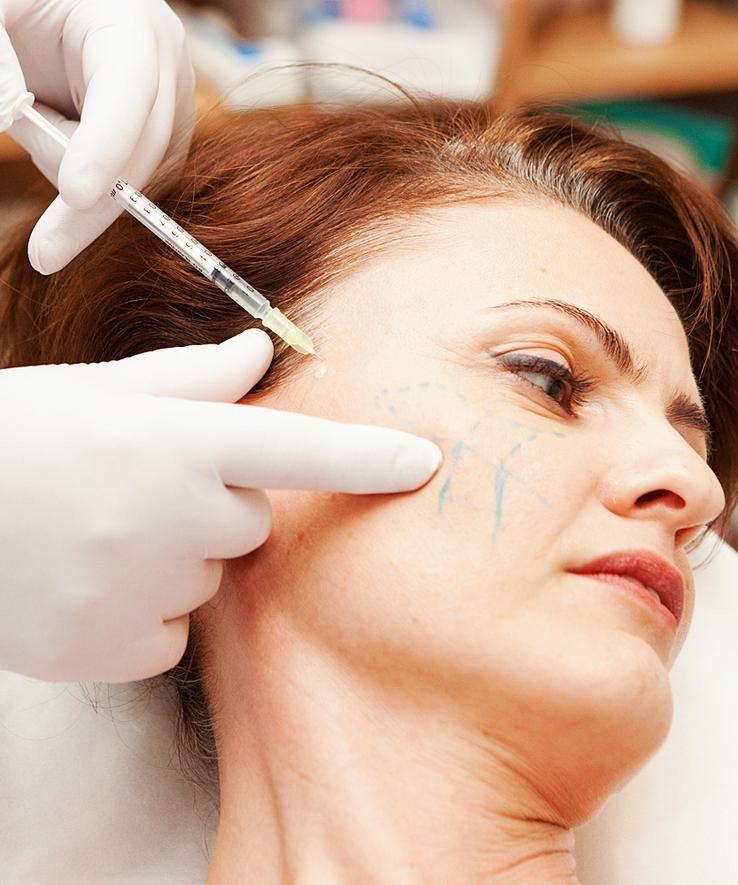 Липофилинг носогубных складок: отзывы, реабилитация, фото и цены
